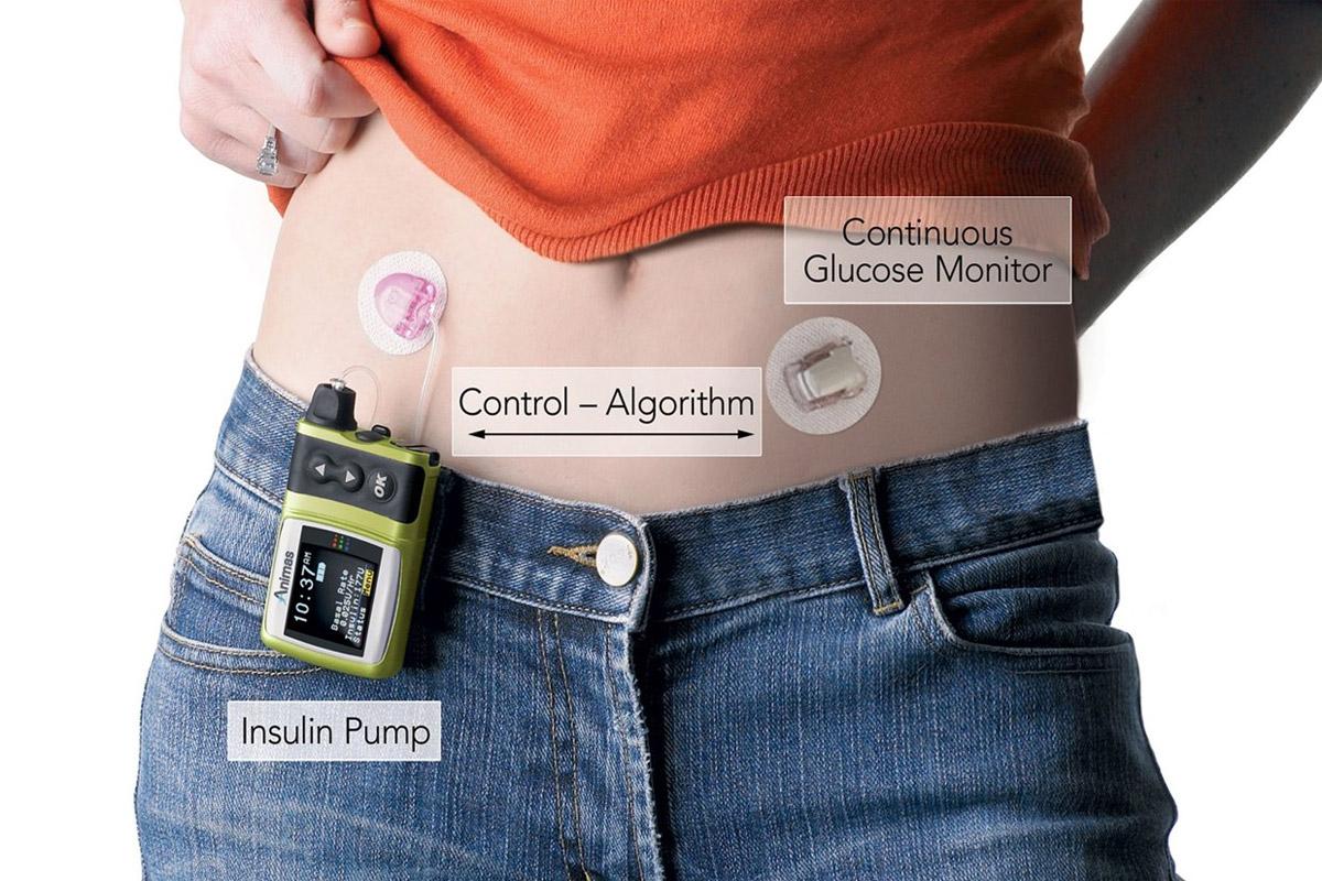 Le pancréas artificiel va changer la vie des diabétiques