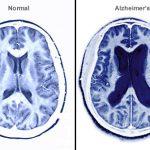A propos du cerveau