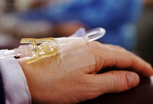 Est-ce que la chimiotherapie fait mal