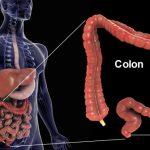 Qu est-ce que le cancer colorectal