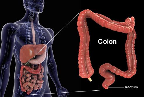 Ce Que Vous Devez Savoir Sur Le Cancer Colorectal Manger