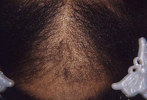 alopecie de traction endommage les follicules