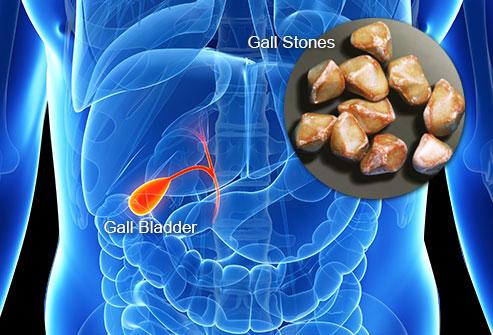 La maladie de la vesicule biliaire