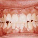 Le grincement de dents