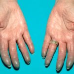 Le syndrome de Raynaud