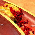 Les AVC et les maladies cardiaques