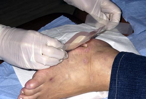 Les blessures aux pieds peuvent etre graves