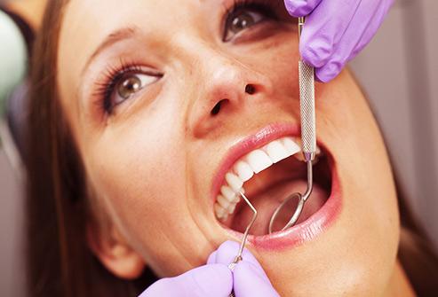 Les dents et les gencives sont les cibles