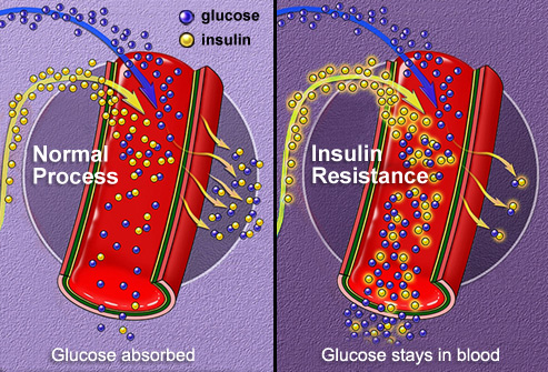 Les impacts sur votre metabolisme