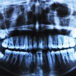 Les rayons X