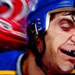 Pratiquer du sport sans protege dents