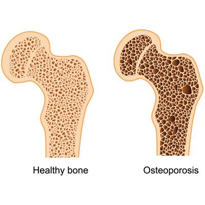 amelioration-de-la-densite-osseuse