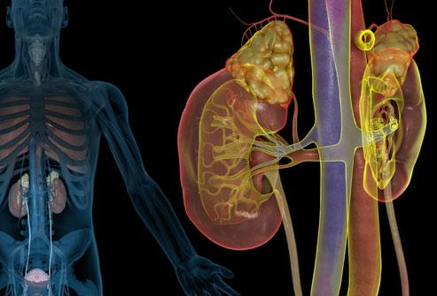 lupus et les problemes renaux