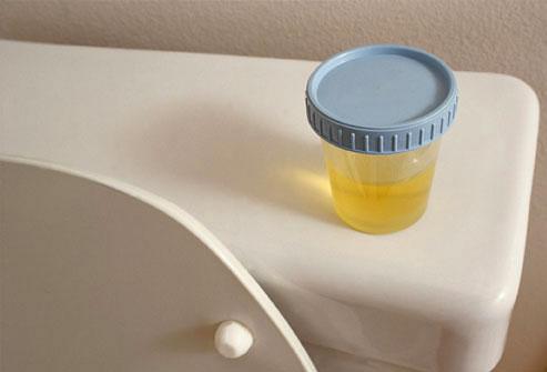 Diagnostiquer incontinence