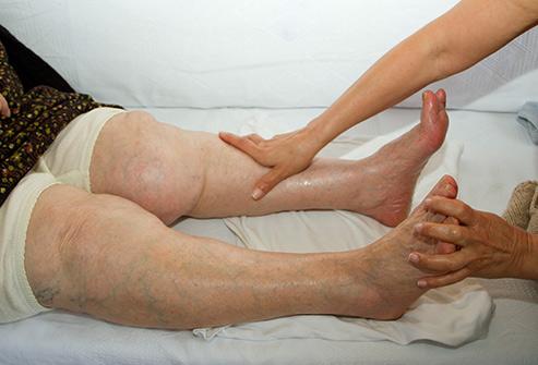gonflements-des-parties-inferieures-des-jambes