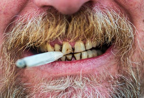 les-dents-et-les-gencives-endommagees