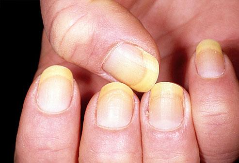 ongles-jaunes