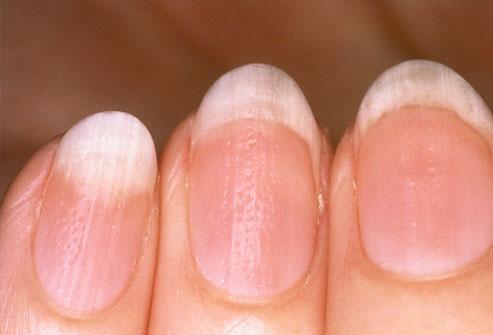 ongles-ondules