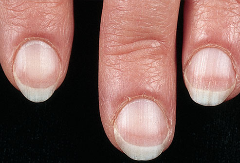 ongles-pales