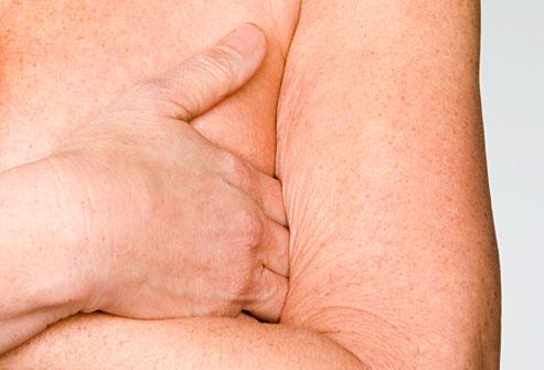 affaissement-des-bras-et-des-seins
