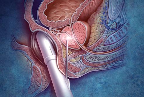 biopsie-du-cancer-de-la-prostate
