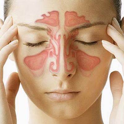 Quelles-sont-les-causes-de-la-sinusite