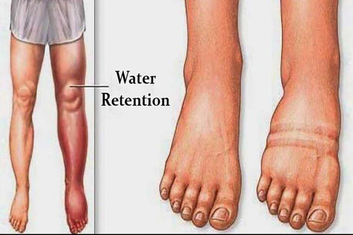 5 conseils pour perdre du poids en réduisant la rétention d'eau !