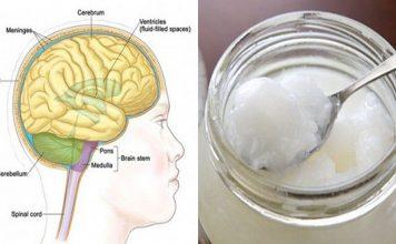Les patients atteints d'Alzheimer montrent des améliorations presque immédiates après avoir mangé 4 cuillères à soupe d'huile de coco !