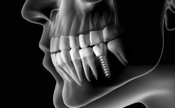 Plus d'implants dentaires, un dentiste fait pousser de nouvelles dents en seulement 9 semaines !