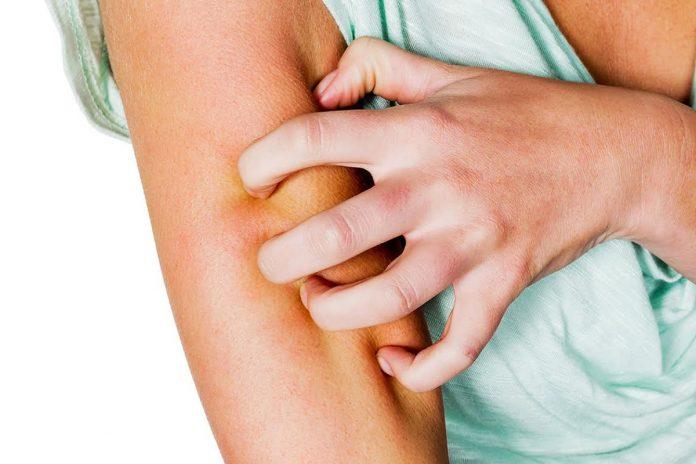 Solutions naturelles pour atténuer le psoriasis !