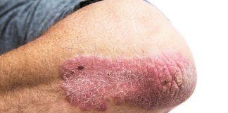 Aliments à éviter si vous souffrez de psoriasis !